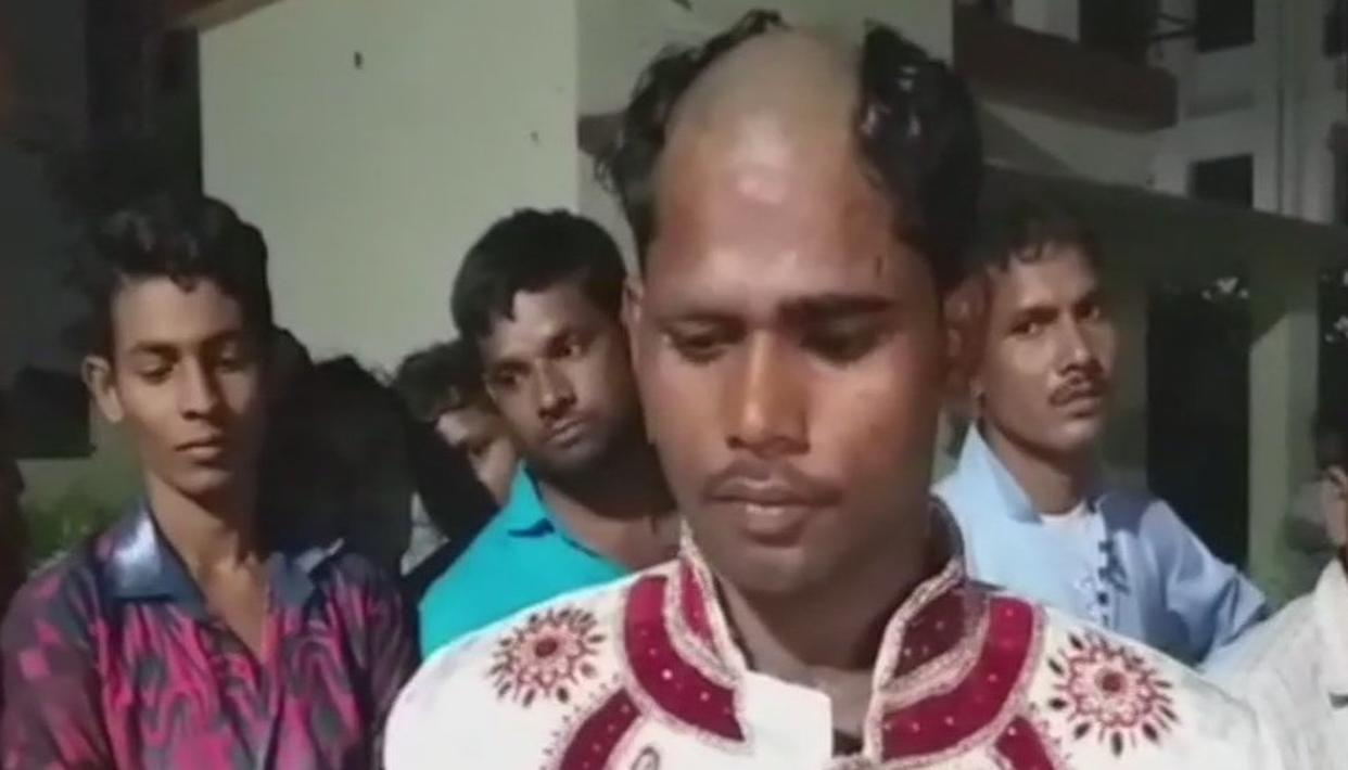 GROOM ENDED UP WITH A PARTIALLY SHAVED HEAD ON HIS WEDDING DAY
