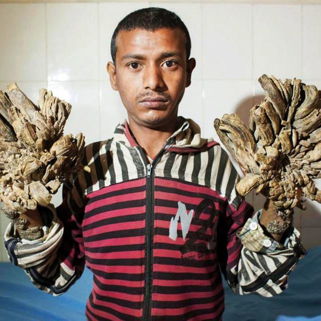 BANGLADESH'S 'TREE MAN' WHO SUFFERS FROM RARE SKIN DISEASE RETURNS TO HOSPITAL AS CONDITION WORSENS