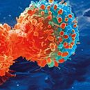 RESEARCHERS IN UK DEVELOP NEW TECHNIQUE TO MAKE CANCER TREATMENT MORE EFFECTIVE, AFFORDABLE
